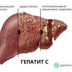 """Лікування хворих на хронічні вірусні гепатити в КП """"ХІЛ"""""""